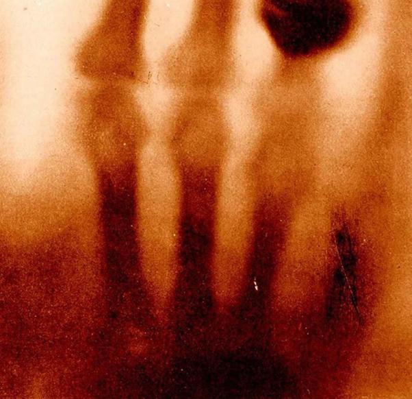 اولین اشعه ایکس پزشکی در جهان