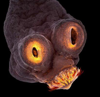 سر کرم نواری (Tapeworm)-سایت یک سوال