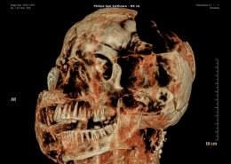 چطوری مردم روم باستان دندان های سالمی داشتند در صورتی که دندان پزشکی هنوز وجود نداشت؟