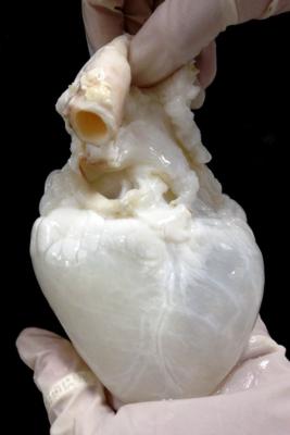 قلب بی خون
