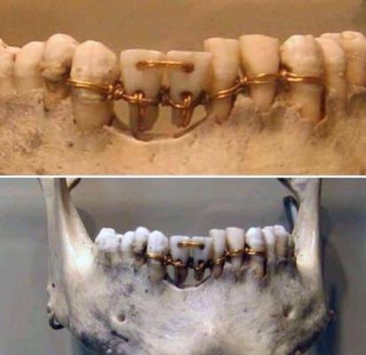 پل دندانی