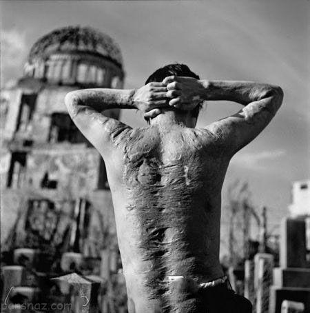 بازمانده بمب اتمی هیروشیما