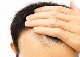 بهترین ترفند برای جلوگیری از ریزش مو چیست؟